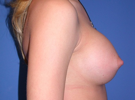 After- Breast Augmentation 2