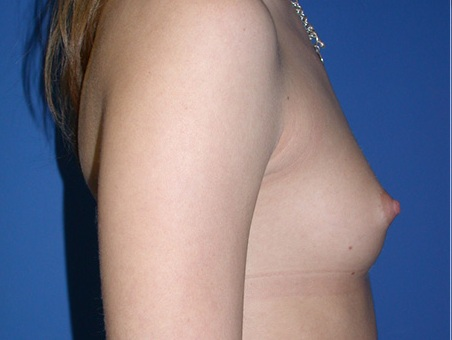 Before- Breast Augmentation 2