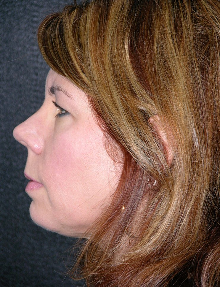 After-Chin Augmentation Case 2