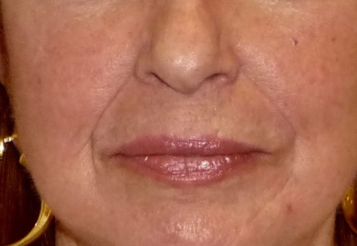 After-Erbium YAG Laser Treatment