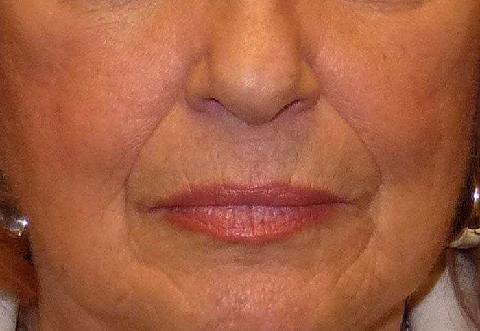 Before-Erbium YAG Laser Treatment