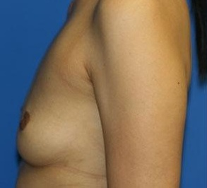 Before- Breast Augmentation 3