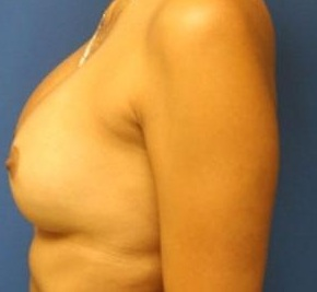 After- Breast Augmentation 3