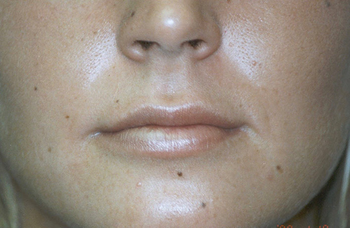 After-Lip Injection Case 1