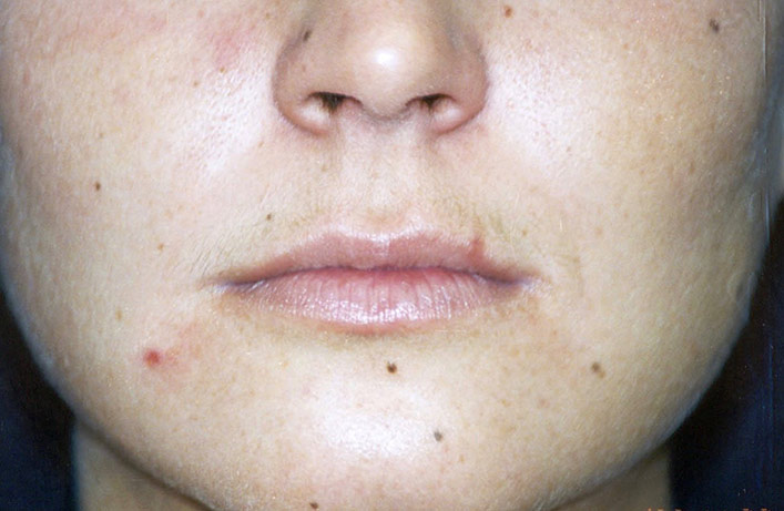 Before-Lip Injection Case 1