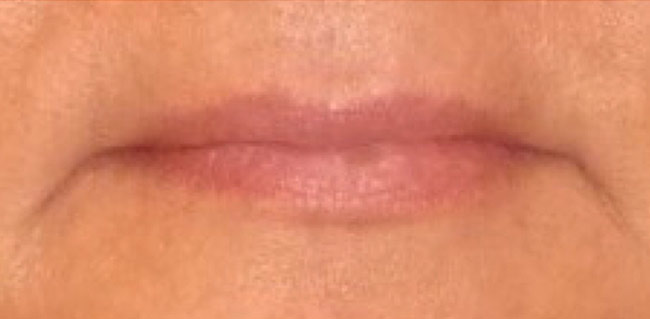Before-Lip Augmentation Case 1