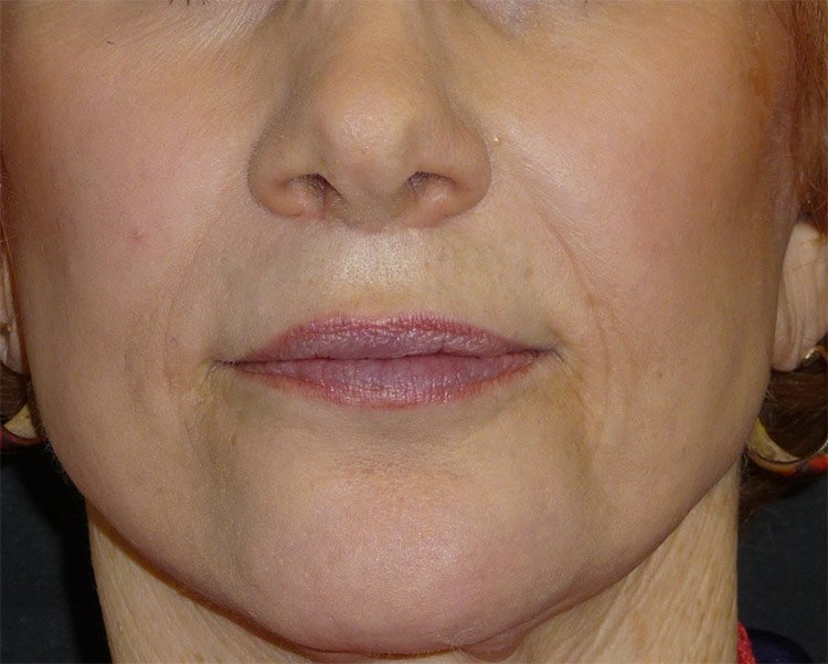 After-Upper Lip Lift Case 2