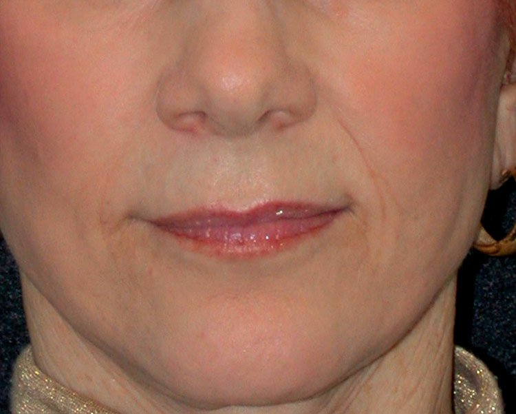 Before-Upper Lip Lift Case 2