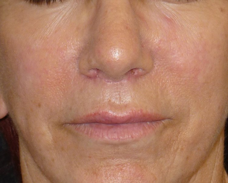 After-Upper Lip Lift Case 1