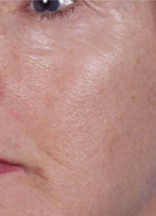 Before-Sciton NanoLaserPeel