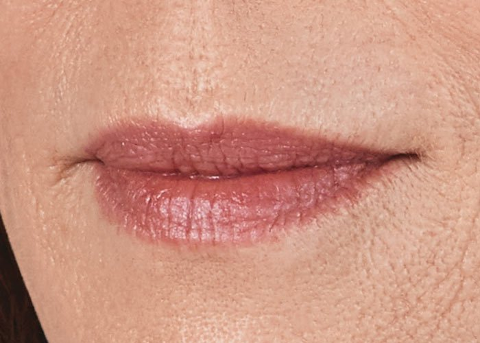 Before-Lip Injection Case 1 Close up