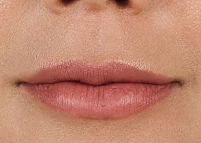 After-Lip Injection Case 2