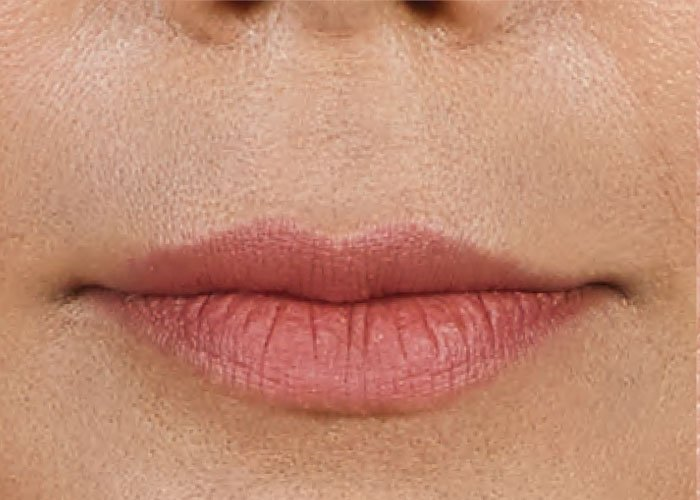 Before-Lip Injection Case 2