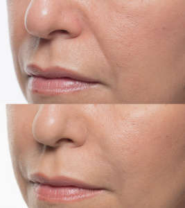 Bellafill for Nasolabial Folds