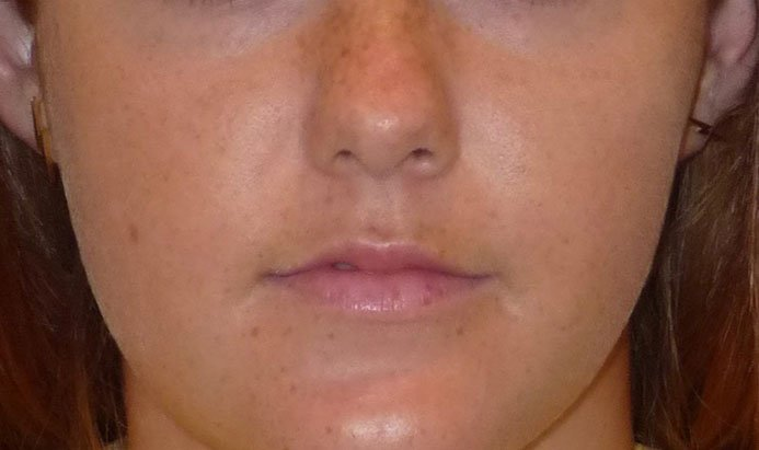 Before-Lip Injection Young Woman