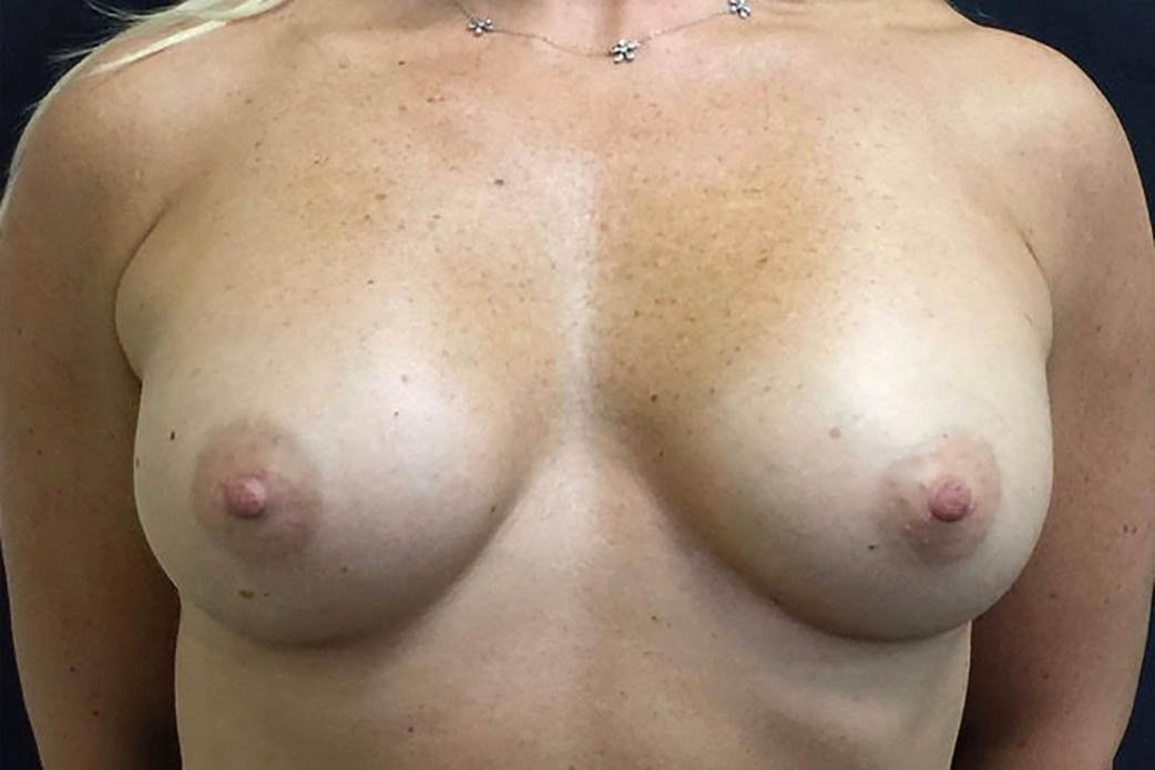After-Breast Augmentation 7