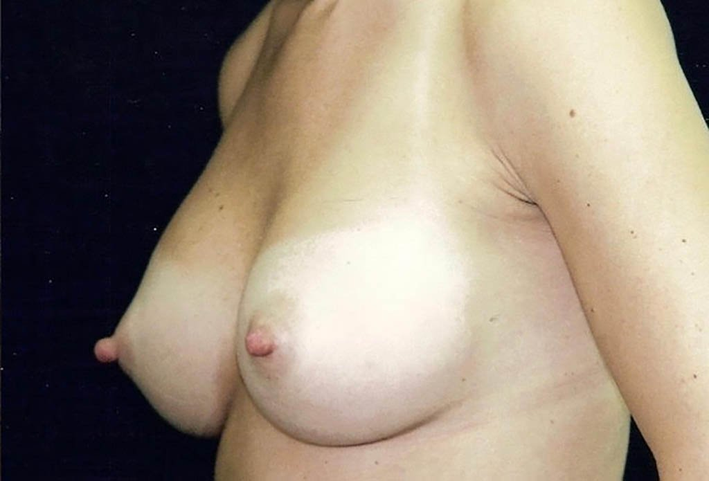 After-Breast Augmentation 3