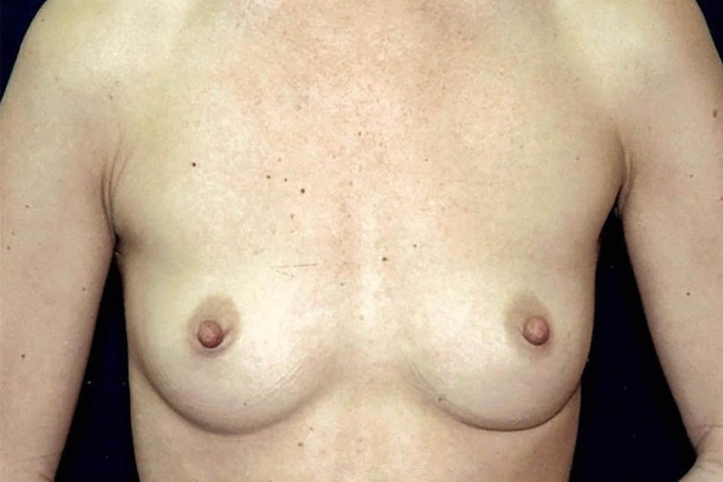 Before-Breast Augmentation 4