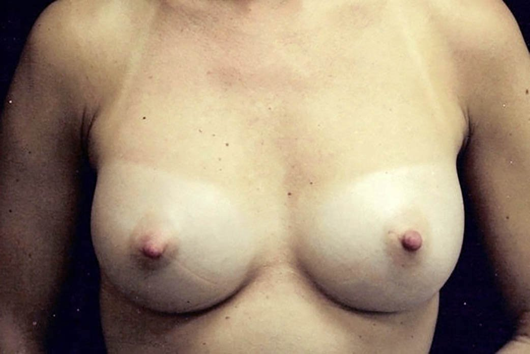 After-Breast Augmentation 4