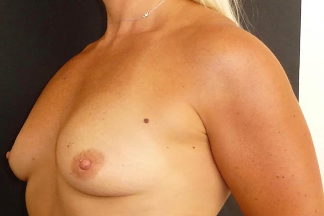 Before-Breast Augmentation 6