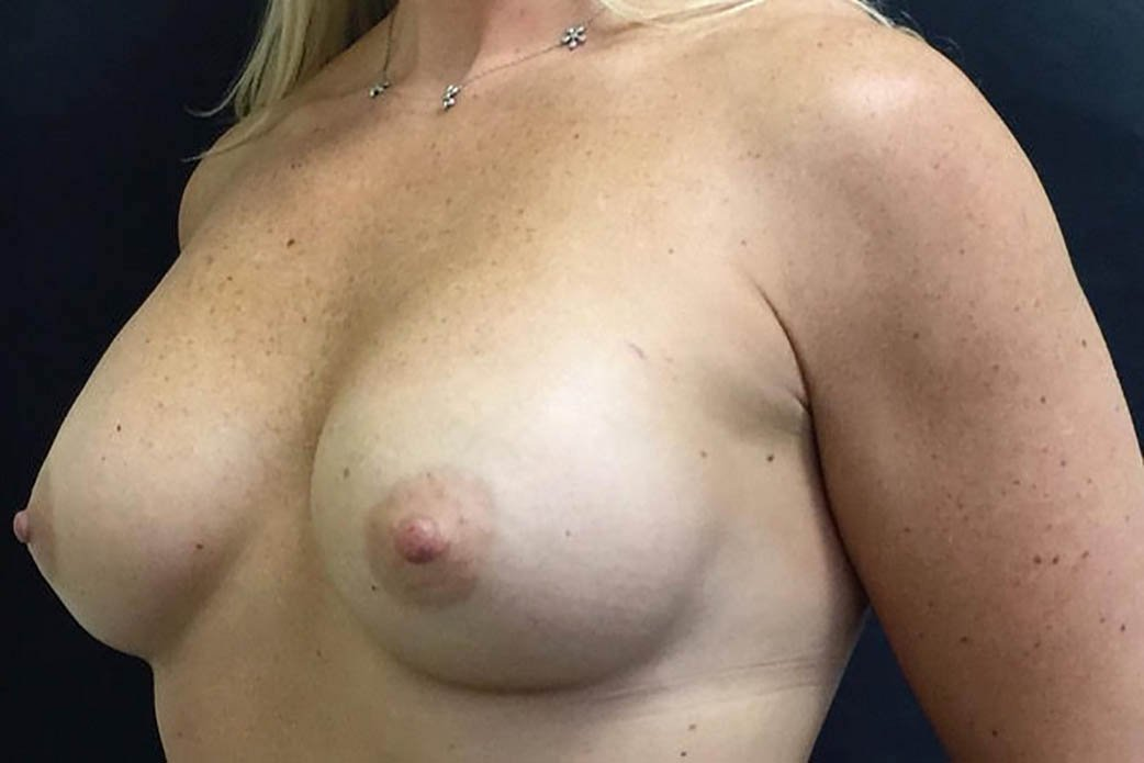 After-Breast Augmentation 6
