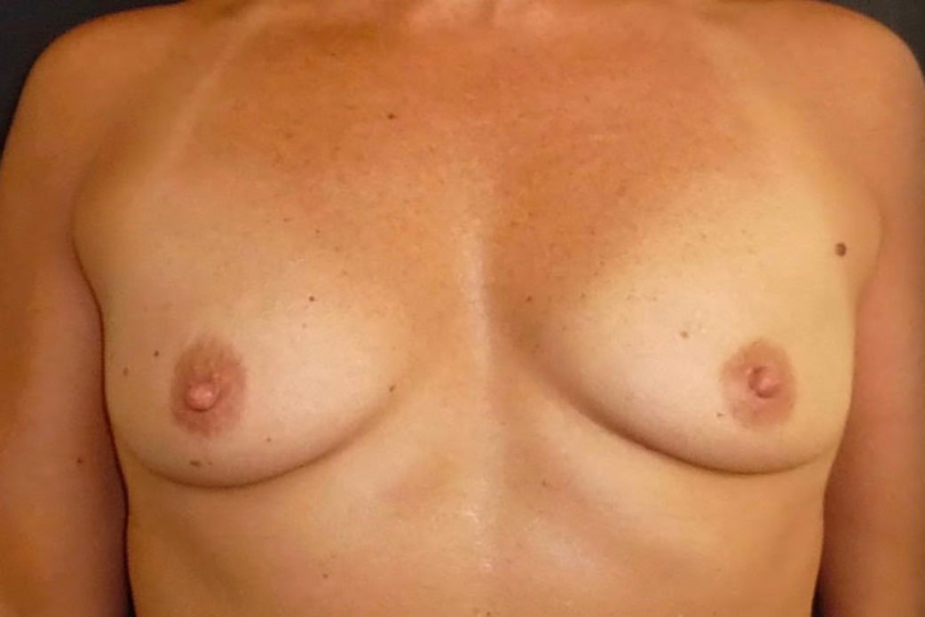 Before-Breast Augmentation 7